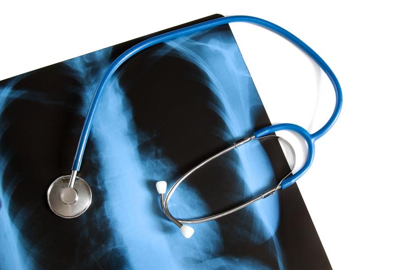 """sfatulparintilor.ro - Despre osteoporoza: Tot ce trebuie sa stii despre """"boala muta"""""""
