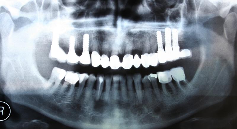 sfatulparintilor.ro - radiografii dentare