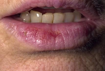sfatulparintilor.ro-cheilita actinica