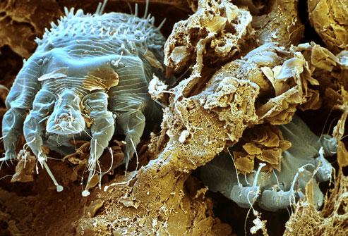ciupituri insecte- sfatulparintilor.ro - scabie - webmd_com