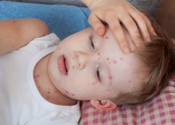 sfatulparintilor.ro-Semnal de alarmă! Atenţie la varicelă în grădiniţe şi şcoli