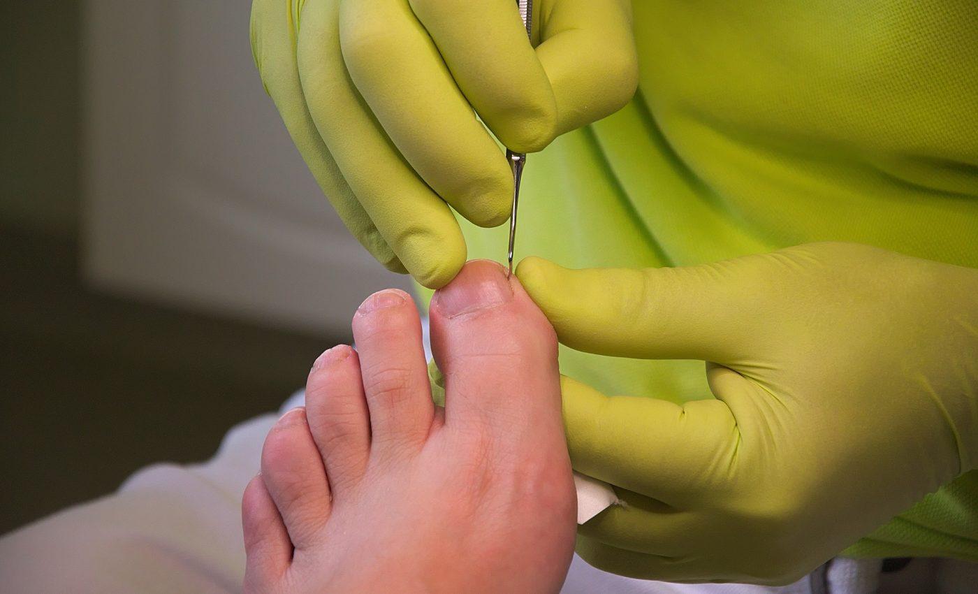 riscuri la care te expui la pedichiura - sfatulparintilor.ro - pixabay-com - foot-care-3557103_1920