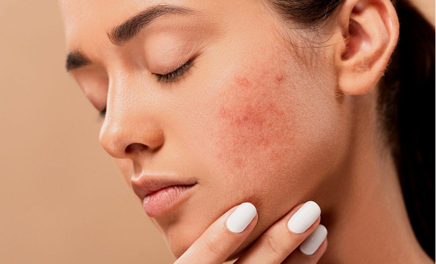ce alimente provoaca acnee - sfatulparintilor.ro - pixabay_com - acne-5561750_1920
