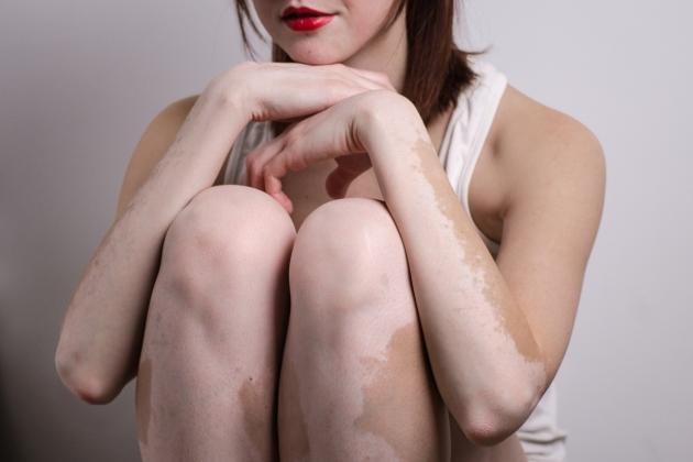 ce este vitiligo
