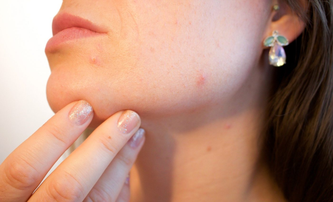 Dereglari hormonale - sfatulparintilor.ro - pixabay_com - acne-1606765_1920
