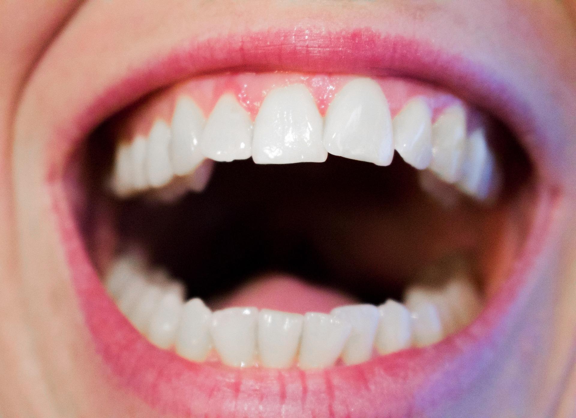 afte bucale - sfatulparintilor.ro - pixabay_com- teeth-1652937_1920