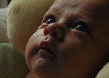 Acneea la bebelusi