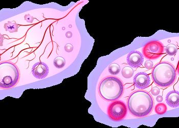Simptome ovulatie - SFATULPARINTILOR.RO - PIXABAY-COM - ovary-5294609_1920