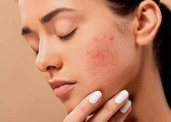 Ce sa nu faci cand ai acnee
