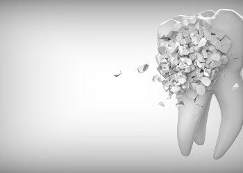 Caderea dintilor